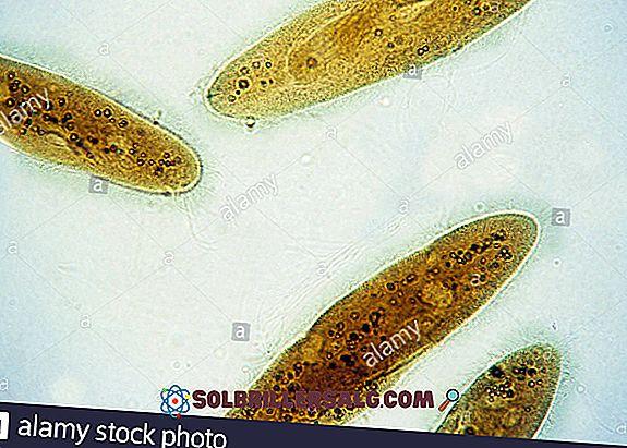 Coliform: karakteristik, jenis, genera, penyakit yang disebabkan