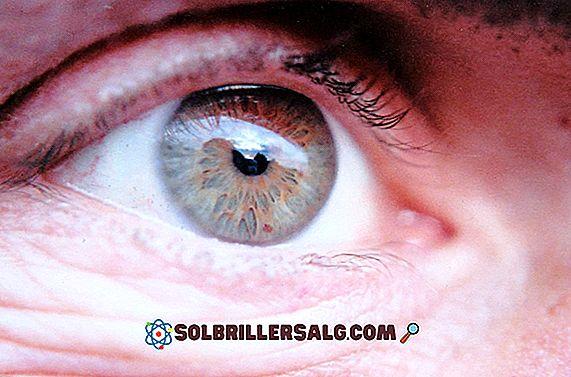 Degenerazione ialina: definizione, tipi, diagnosi e trattamento