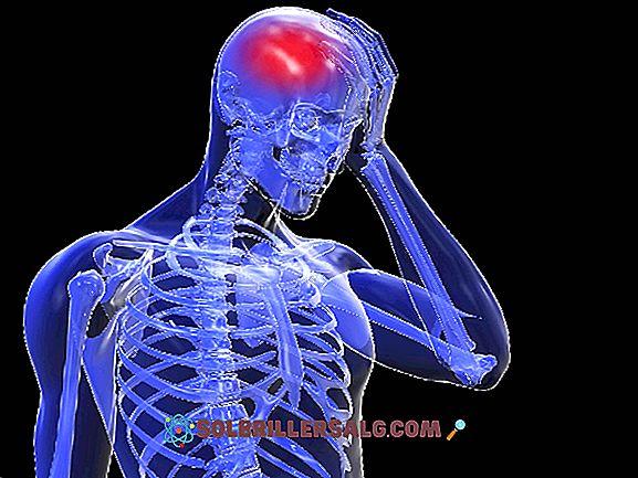 Cerebral Embolism: Symptom, Orsaker, Behandling