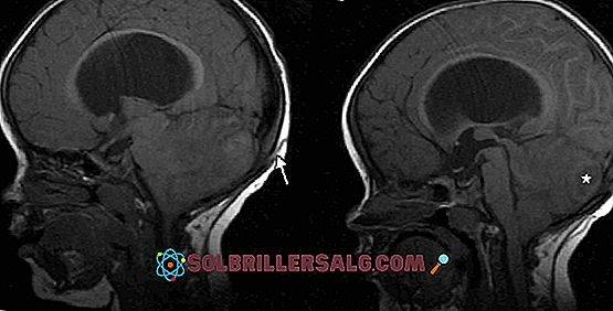Cerebellar Ataxia: Penyebab, Gejala dan Perawatan