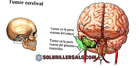เนื้องอกในสมอง: ชนิดอาการสาเหตุและการรักษา