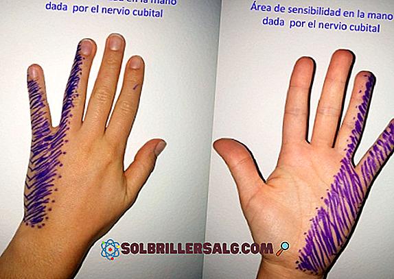 Neuropatia sensoriale: sintomi, cause, trattamento