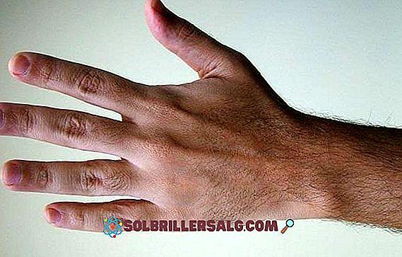 diabetes domningar i armarna