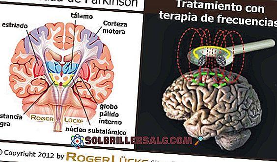 Simptomele inițiale ale bolii Parkinson
